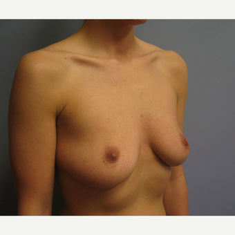 25-34 year old woman treated with Breast Augmentation before 3538971