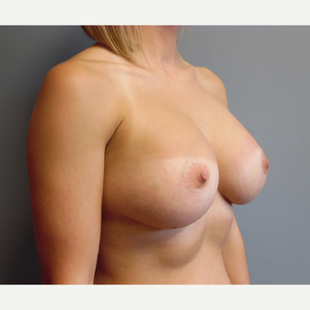 25-34 year old woman treated with Breast Augmentation after 3538971