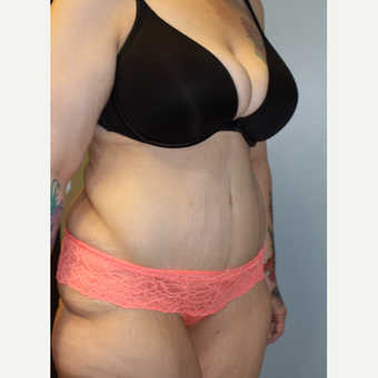 25-34 year old woman treated with Tummy Tuck after 3692287
