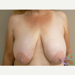 Breast Reduction before 3373594