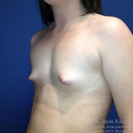 18-24 year old woman treated with Breast Augmentation before 1709858