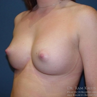 18-24 year old woman treated with Breast Augmentation after 1709858