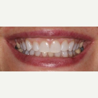 45-54 year old woman treated with Teeth Whitening after 2487502
