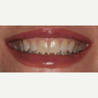 45-54 year old woman treated with Teeth Whitening before 2487502