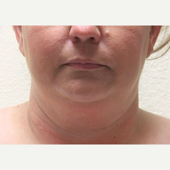45-54 year old woman treated with Laser Liposuction before 3802778