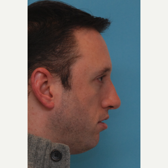25-34 year old man treated with Orthognathic Surgery before 3537599