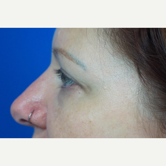 35-44 year old woman treated with Eyelid Surgery before 3376381