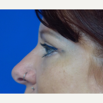 35-44 year old woman treated with Eyelid Surgery after 3376381