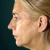 45-54 year old woman treated with Facelift before 3097583