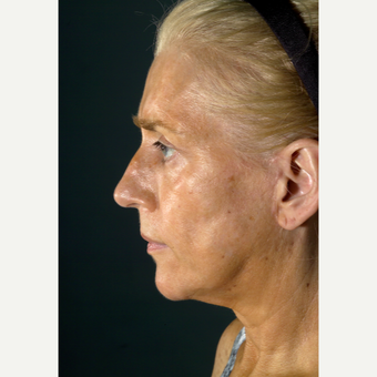45-54 year old woman treated with Facelift after 3097583
