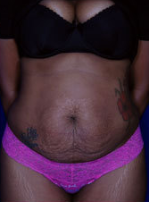 Female Tummy Tuck before 1458704