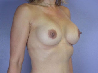Breast Augmentation after 280120