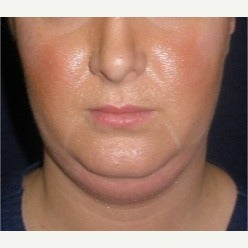 25-34 year old woman treated with Kybella before 2121324