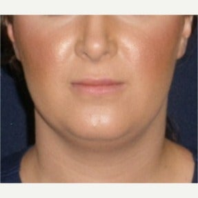 25-34 year old woman treated with Kybella after 2121324