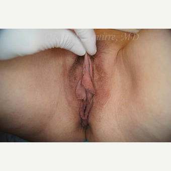 50 yo female had Labiaplasty of Labia Minora, Clitoral Hood Reduction with Clitoropexy before 3065096