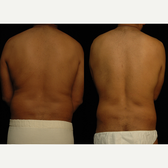 25-34 year old man treated with Liposuction after 3659438
