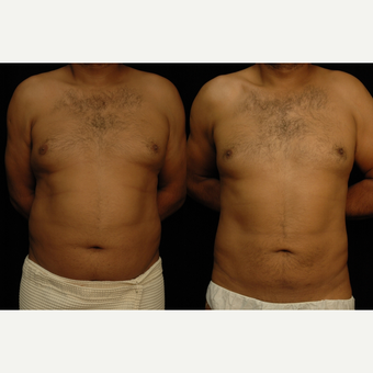 25-34 year old man treated with Liposuction before 3659438