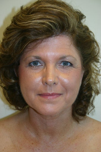 54 Year Old Female Neck Lift after 837045