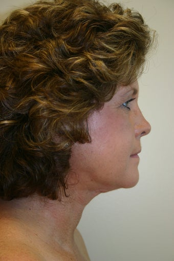 54 Year Old Female Neck Lift 837045