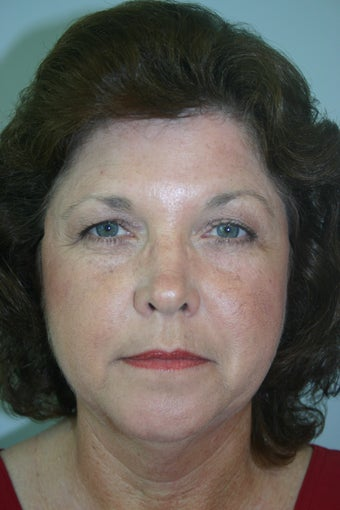 54 Year Old Female Neck Lift before 837045