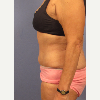 45-54 year old woman treated with Tummy Tuck after 3131888