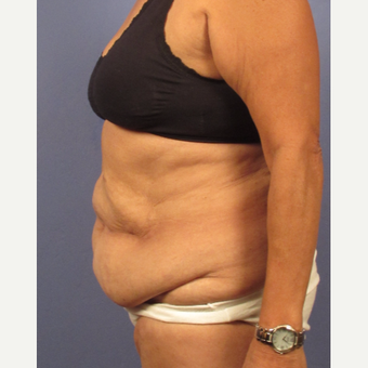 45-54 year old woman treated with Tummy Tuck before 3131888