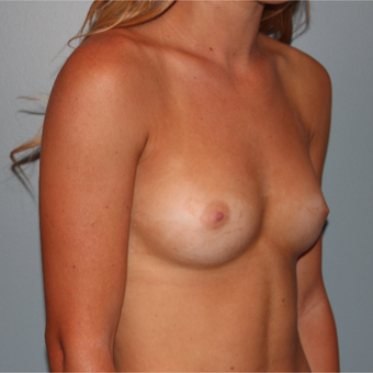 Breast augmentation using 325 cc Sientra Breast Implants before 3465164