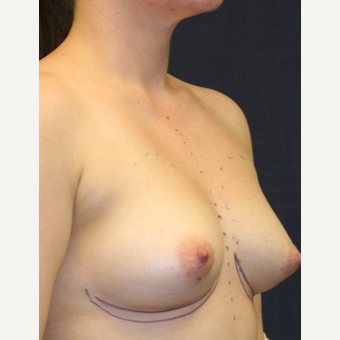 29 year old woman treated with Mentor Breast Implants before 3695563