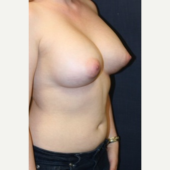 29 year old woman treated with Mentor Breast Implants after 3695563