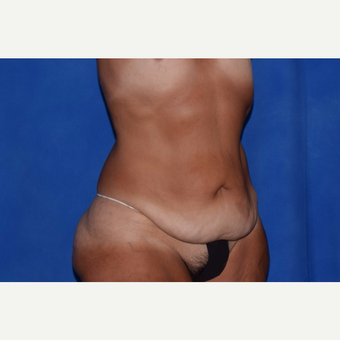 45-54 year old woman treated with No-Drain Body Lift before 3755266