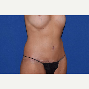 45-54 year old woman treated with No-Drain Body Lift after 3755266