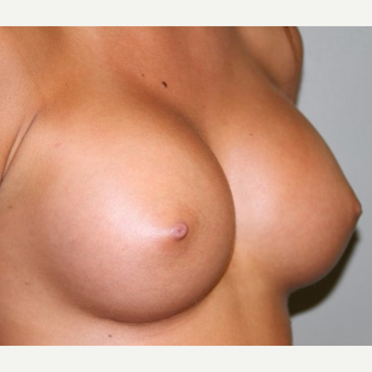 25-34 year old woman treated with Breast Implants after 2878005