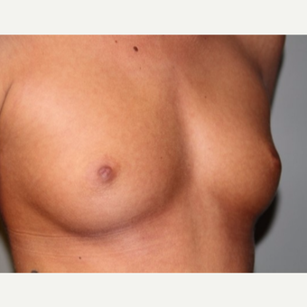 25-34 year old woman treated with Breast Implants before 2878005