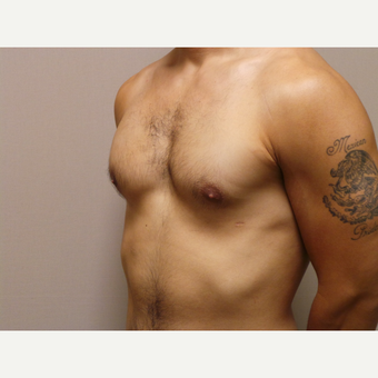 25-34 year old man treated with Male Breast Reduction after 3454719