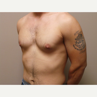 25-34 year old man treated with Male Breast Reduction before 3454719