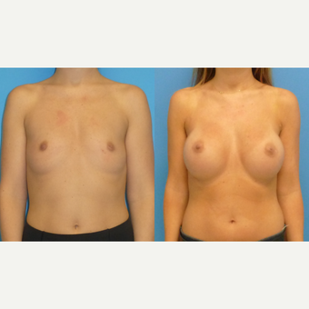 35-44 year old woman treated with Breast Augmentation before 2766138