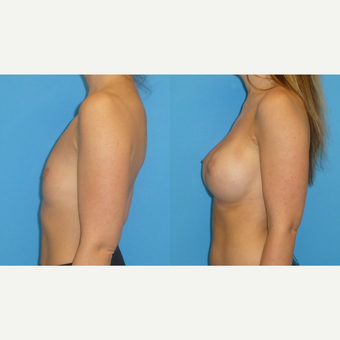 35-44 year old woman treated with Breast Augmentation after 2766138