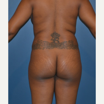 25-34 year old woman treated with Brazilian Butt Lift before 3414889