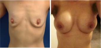 35-44 year old woman treated with Breast Augmentation before 3670646