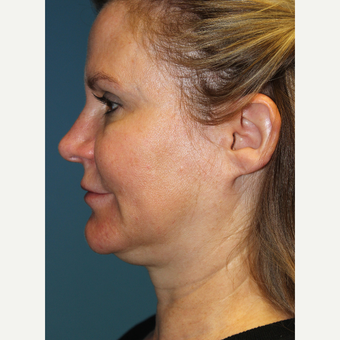 45-54 year old woman treated with Facelift before 3701822