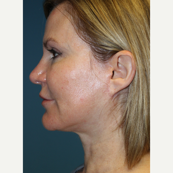 45-54 year old woman treated with Facelift after 3701822