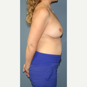 25-34 year old woman treated with Breast Reduction after 3453053
