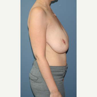 25-34 year old woman treated with Breast Reduction before 3453053