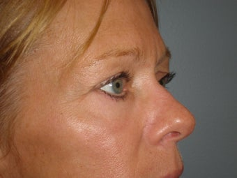 57 Y.O Woman Who Had a Lower Lid Blepharoplasty. 1423497