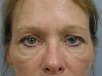 57 Y.O Woman Who Had a Lower Lid Blepharoplasty. before 1423497