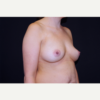 25-34 year old woman treated with Breast Augmentation before 3741725