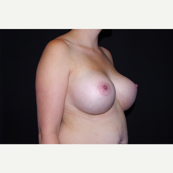 25-34 year old woman treated with Breast Augmentation after 3741725