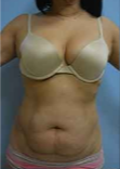 45-54 year old woman treated with Tummy Tuck before 2327025