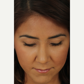25-34 year old woman treated with Rhinoplasty after 3690863