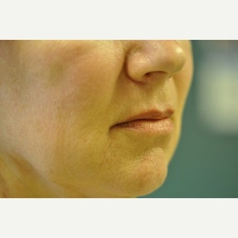 55-64 year old woman treated with Restylane after 2311444